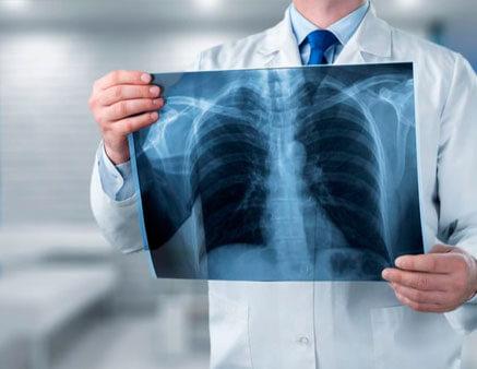 Radiografia e Imagens